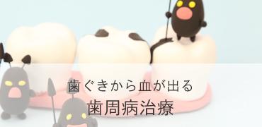 歯ぐきから血が出る【歯周病治療】
